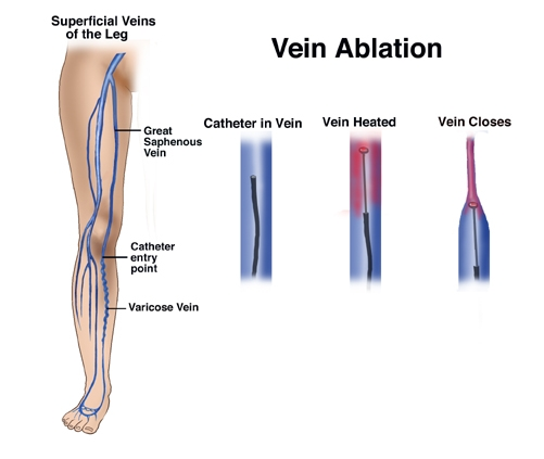 Varicose Vein Ablation on tube radio restoration